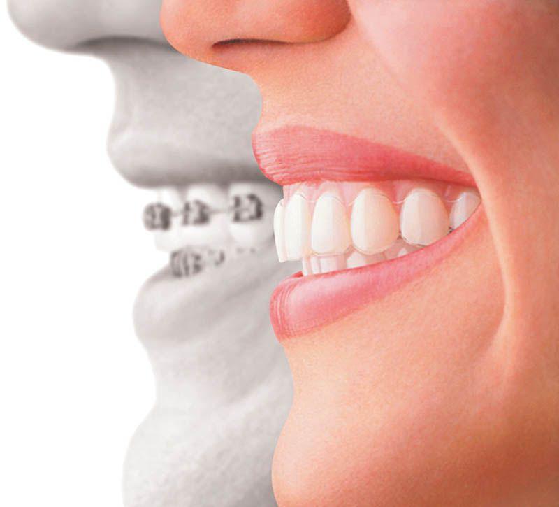 Aparelho dentário em Mauá
