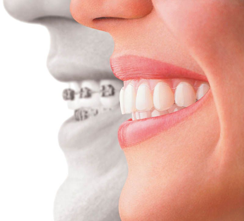 Aparelho dentário em Suzano