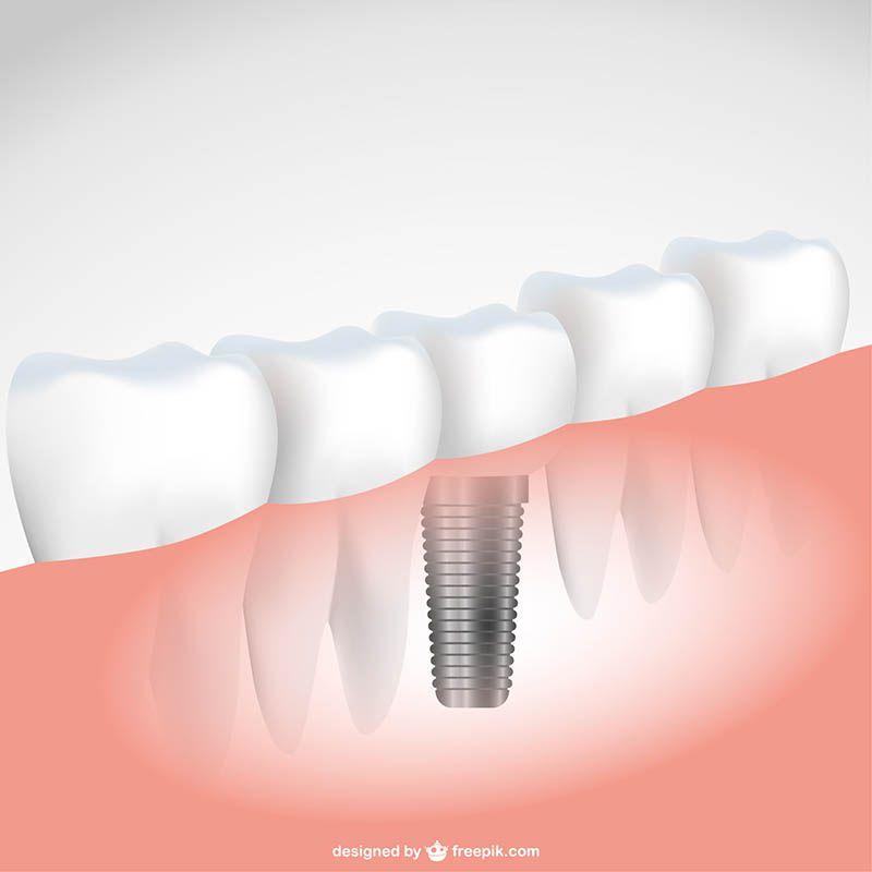 Implante dentário em Mauá
